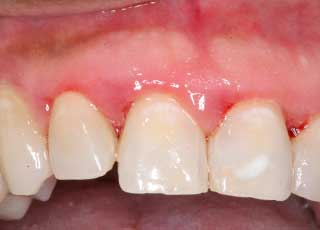 Stages of Periodontal or Gum Disease | Cosmetic Dentist ...