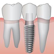 dentalimplant-180