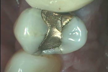 Best option for a tooth that needs a crown